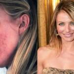 Eliminare le Cicatrici da Acne senza sostanze chimiche